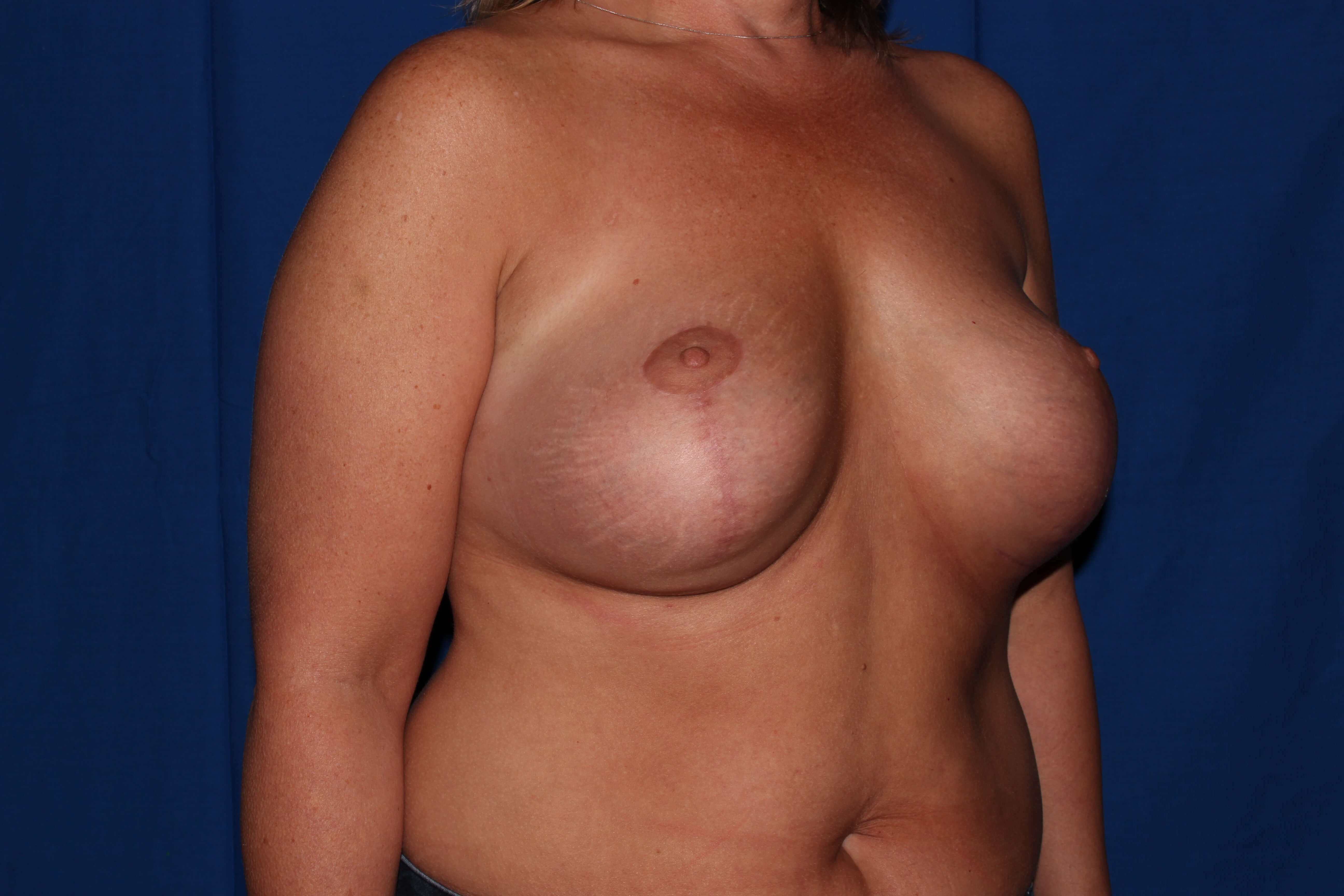 Scottsdale Breast Revision Before