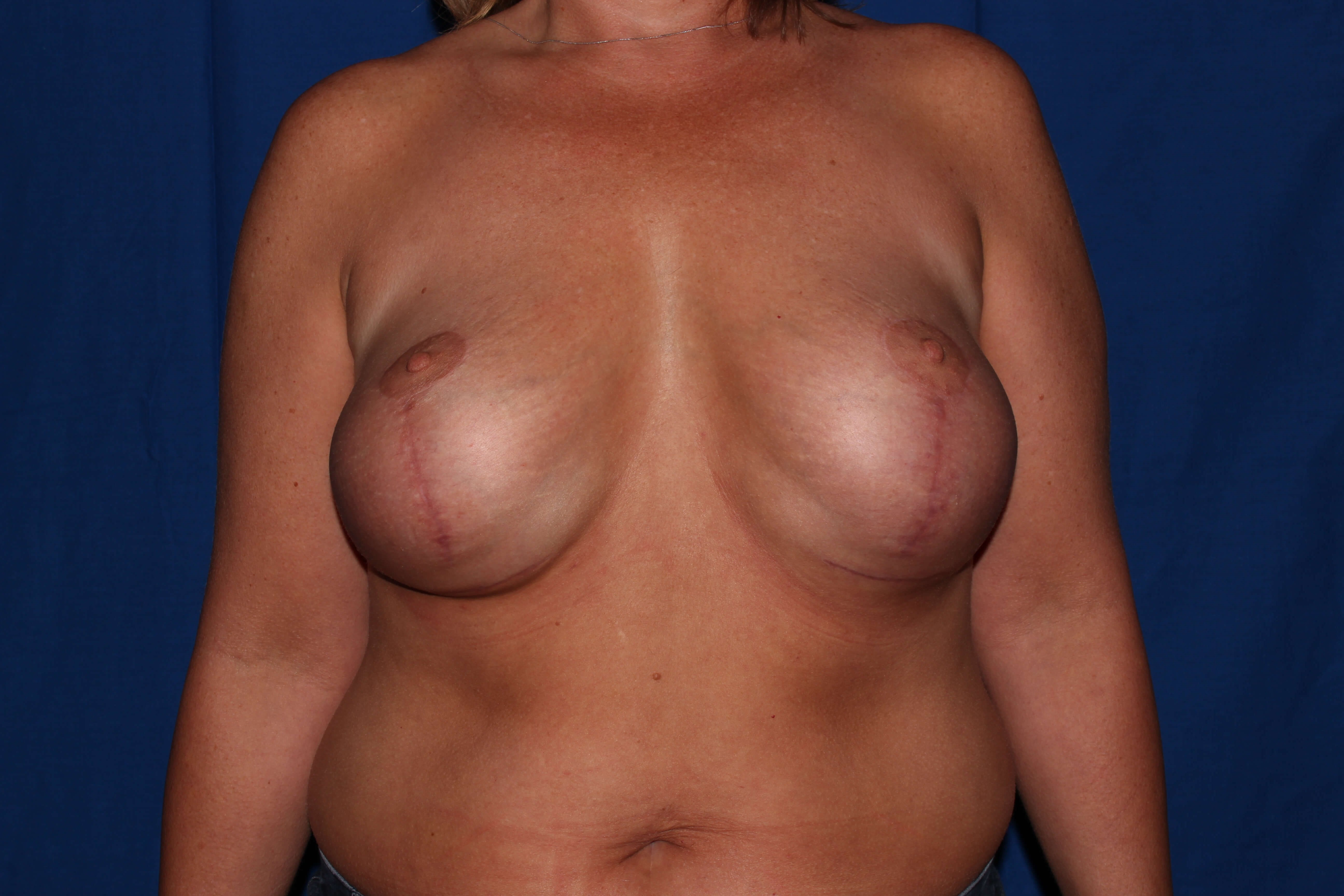Prescott, Az Breast Revision Before