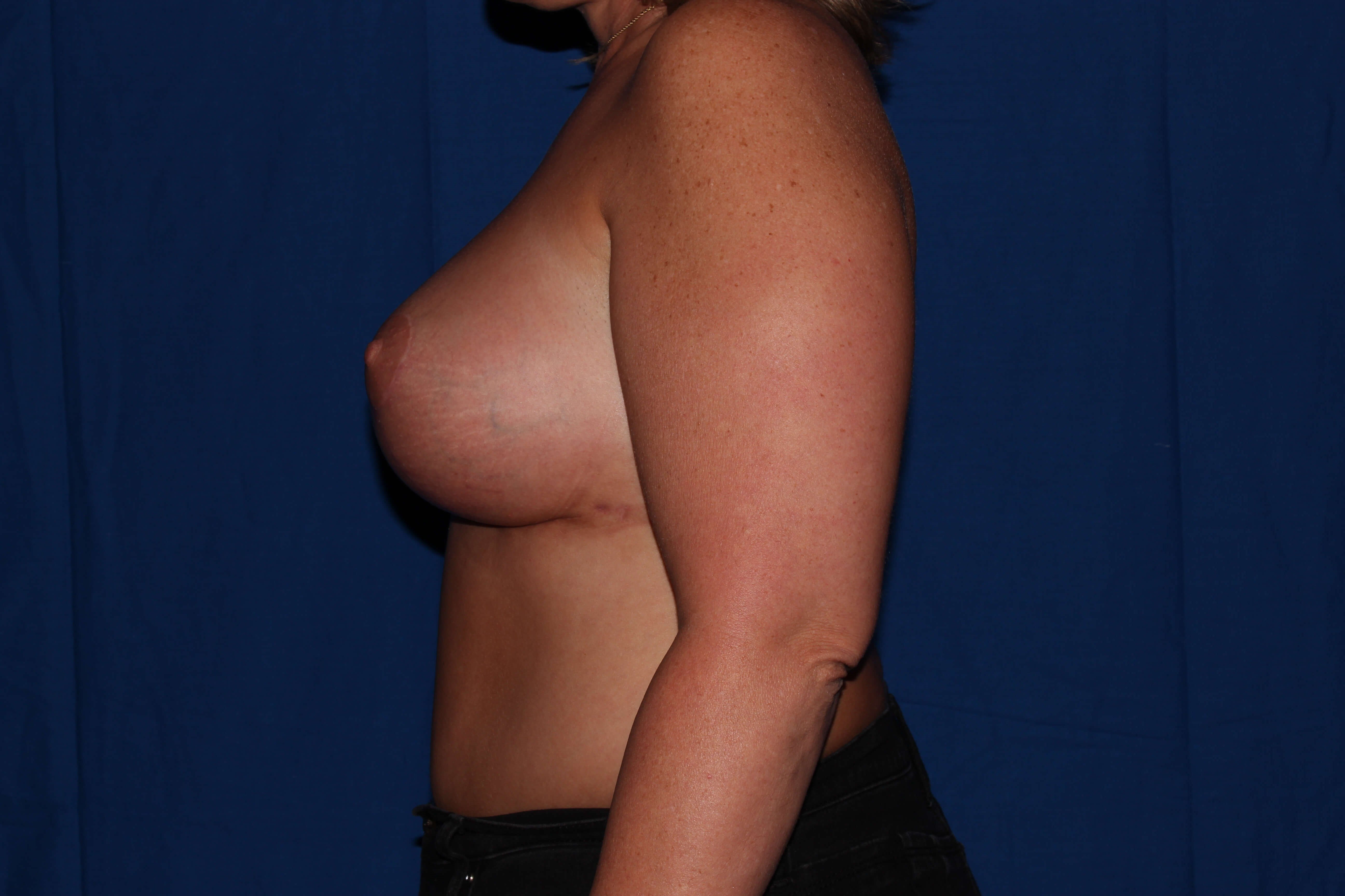 Prescott Az Breast Revision After