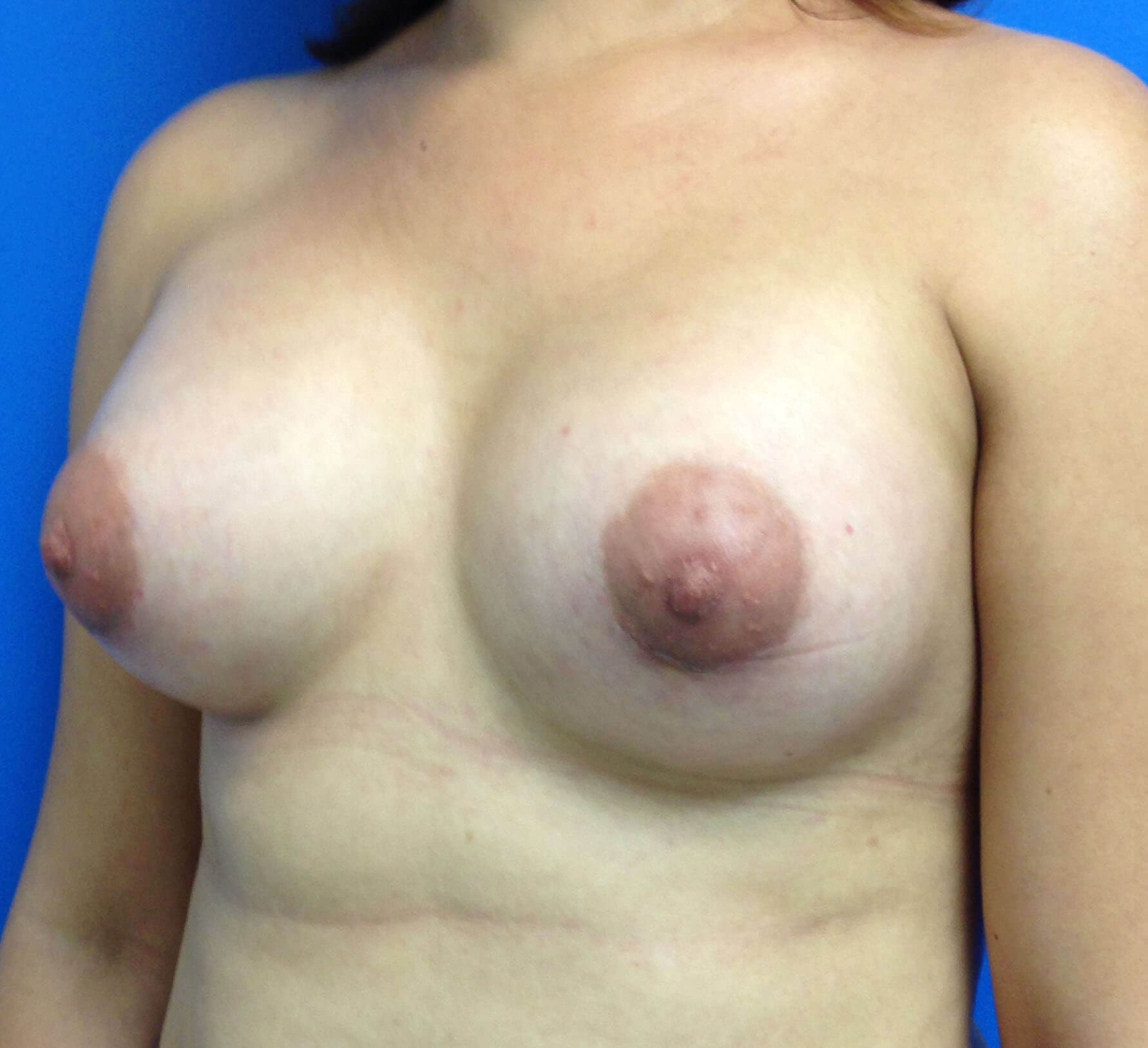 Scottsdale, AZ Breast Aug After