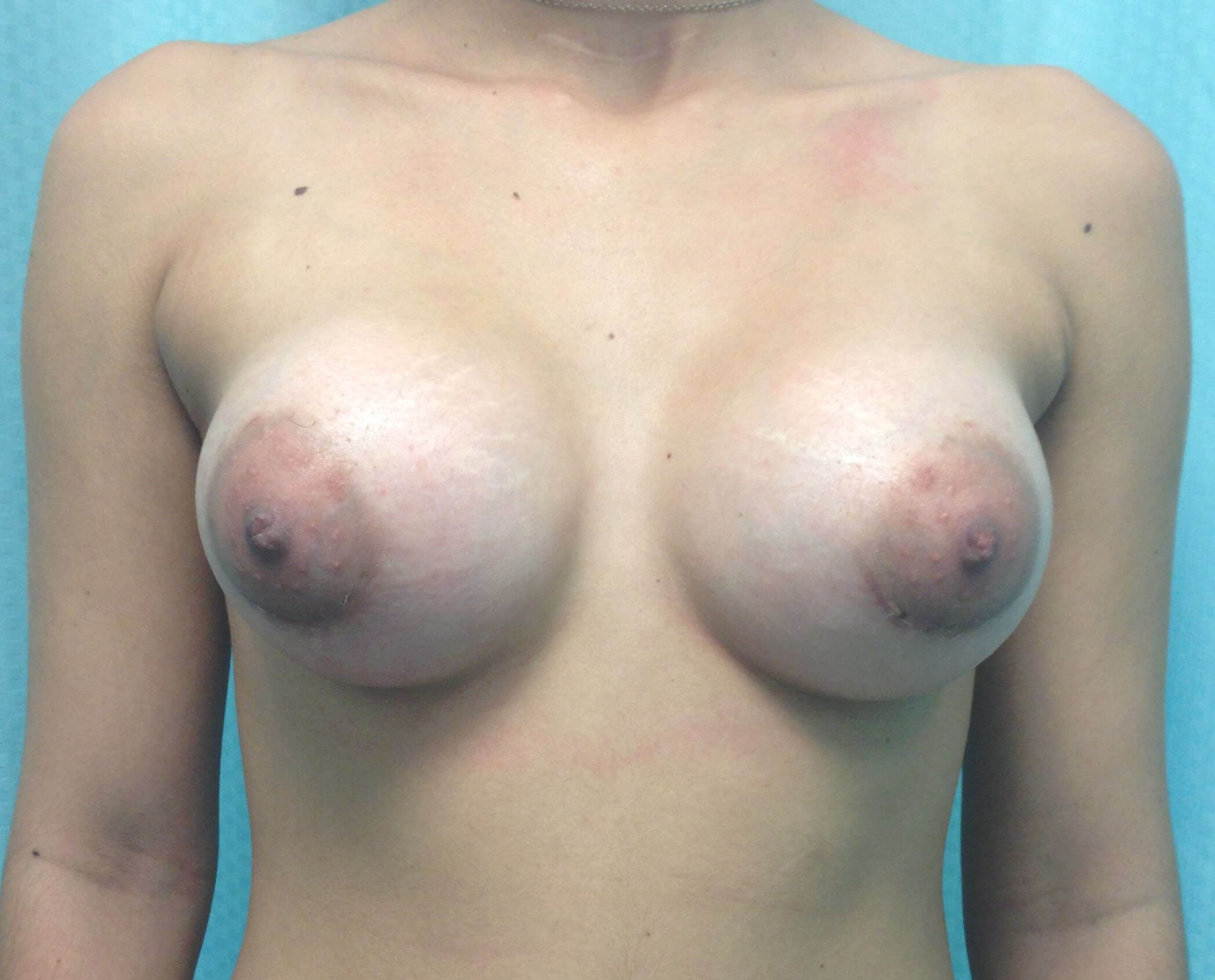 Scottsdale Tuberous Breast After