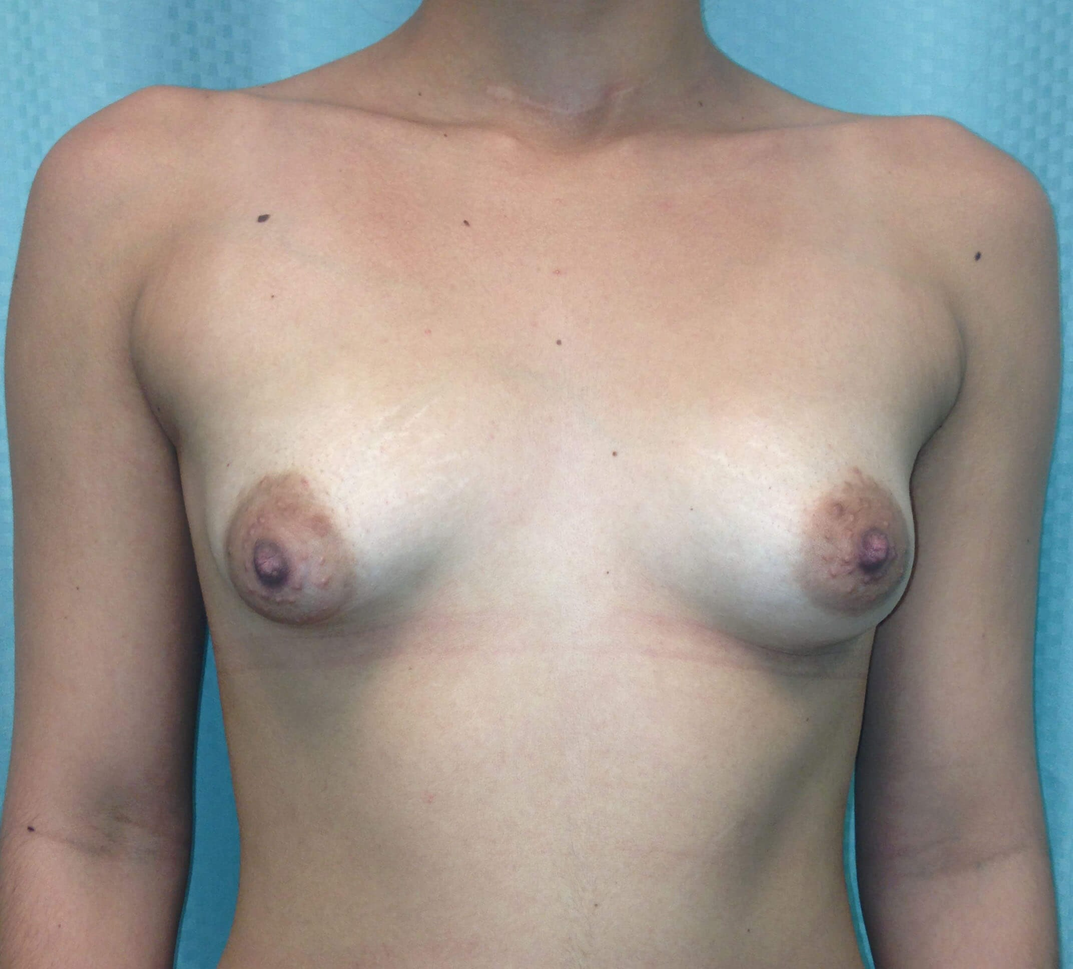 Scottsdale Tuberous Breast Before