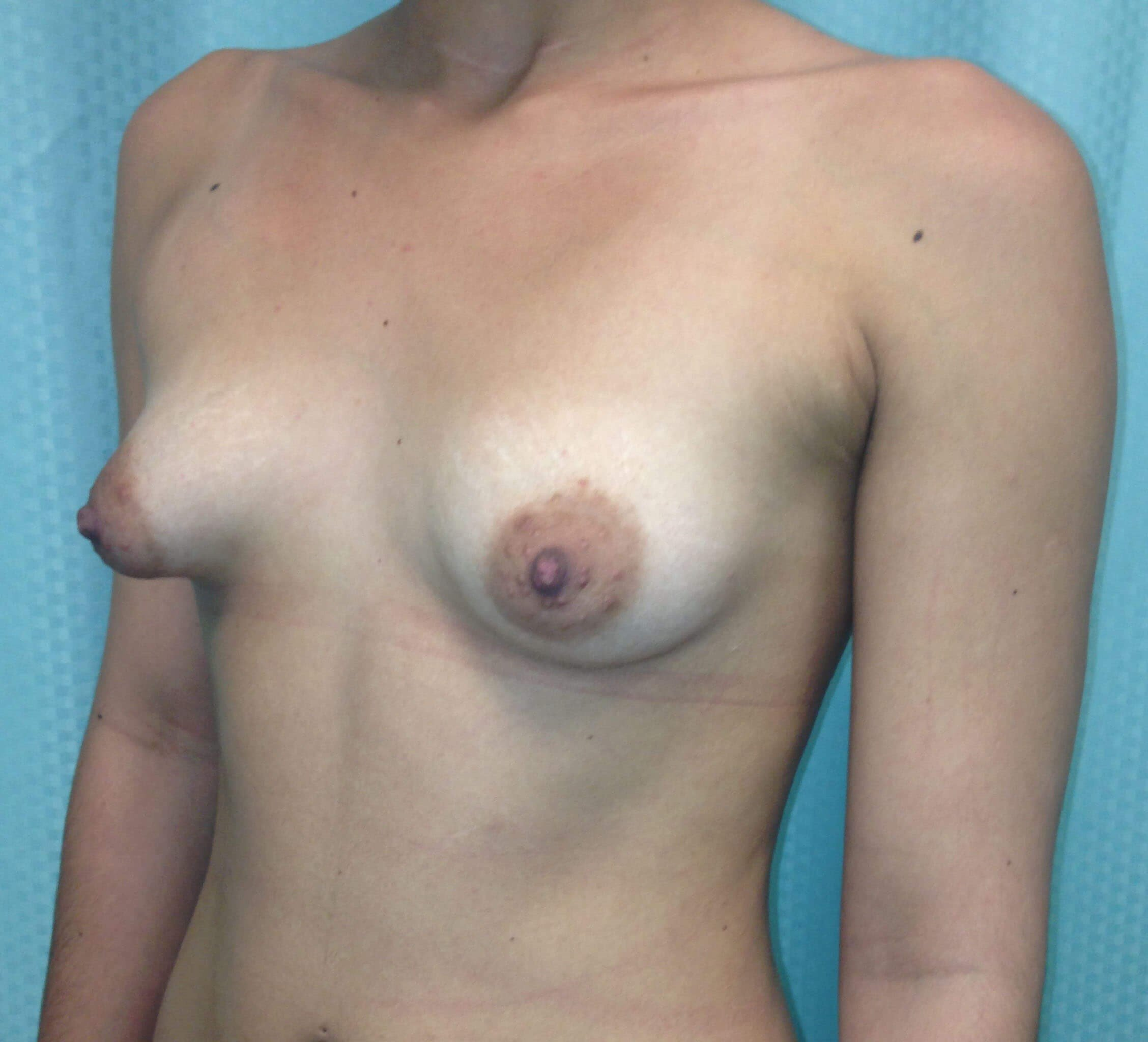 Scottsdale AZ Breast Aug Before
