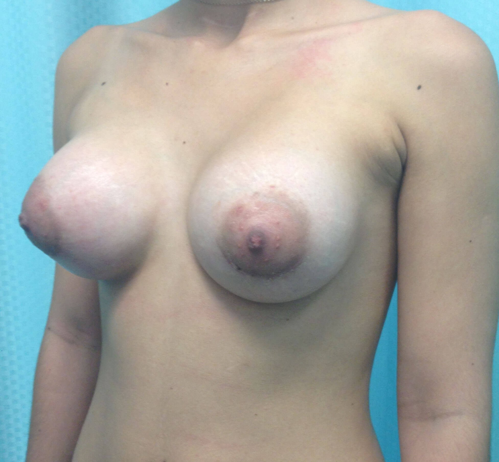 Scottsdale AZ Breast Aug After