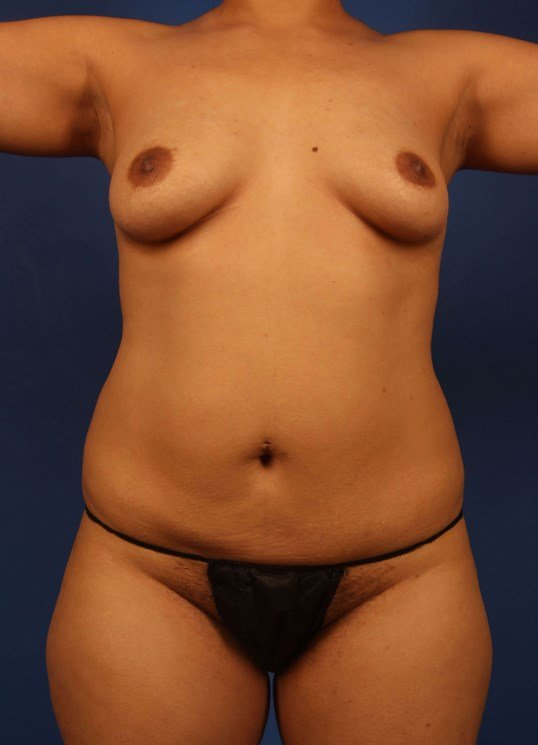 Scottsdale body liposuction Before