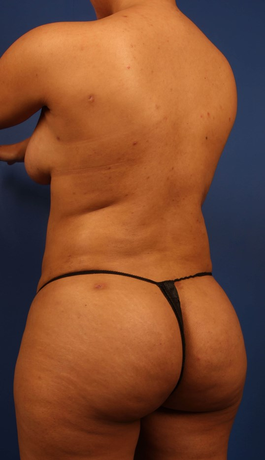 Scottsdale Liposuction BBL After