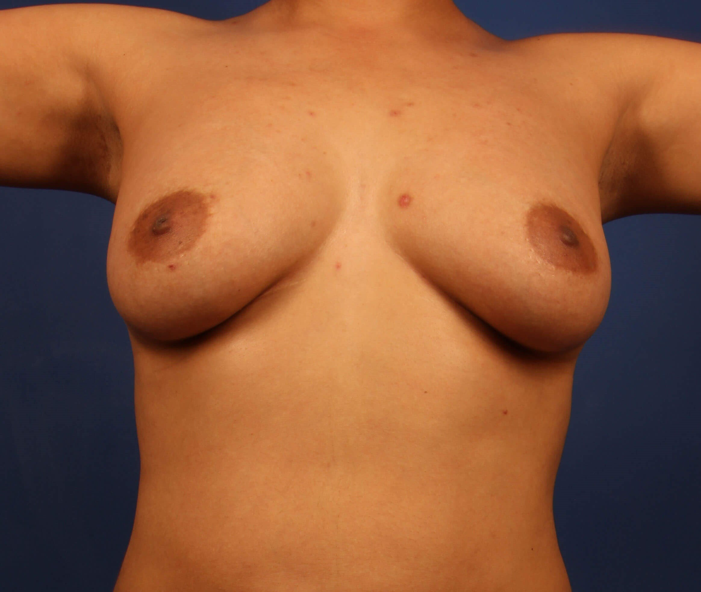 Scottsdale Breast Augmentation After