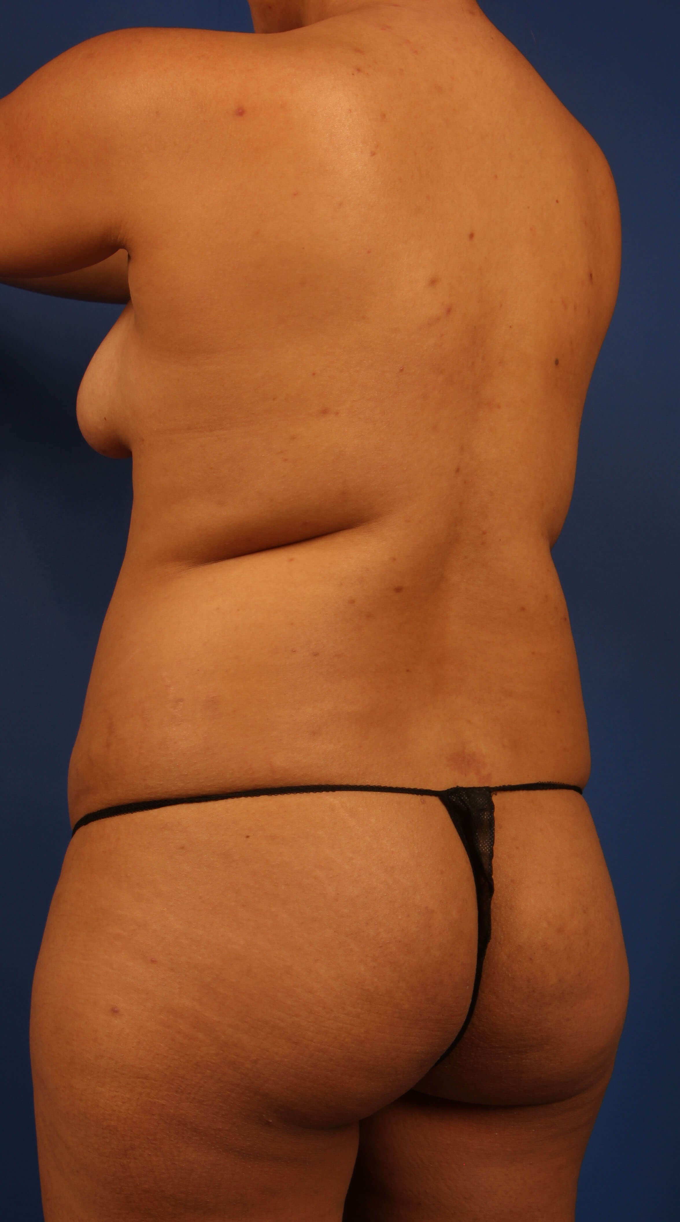 Scottsdale Liposuction BBL Before