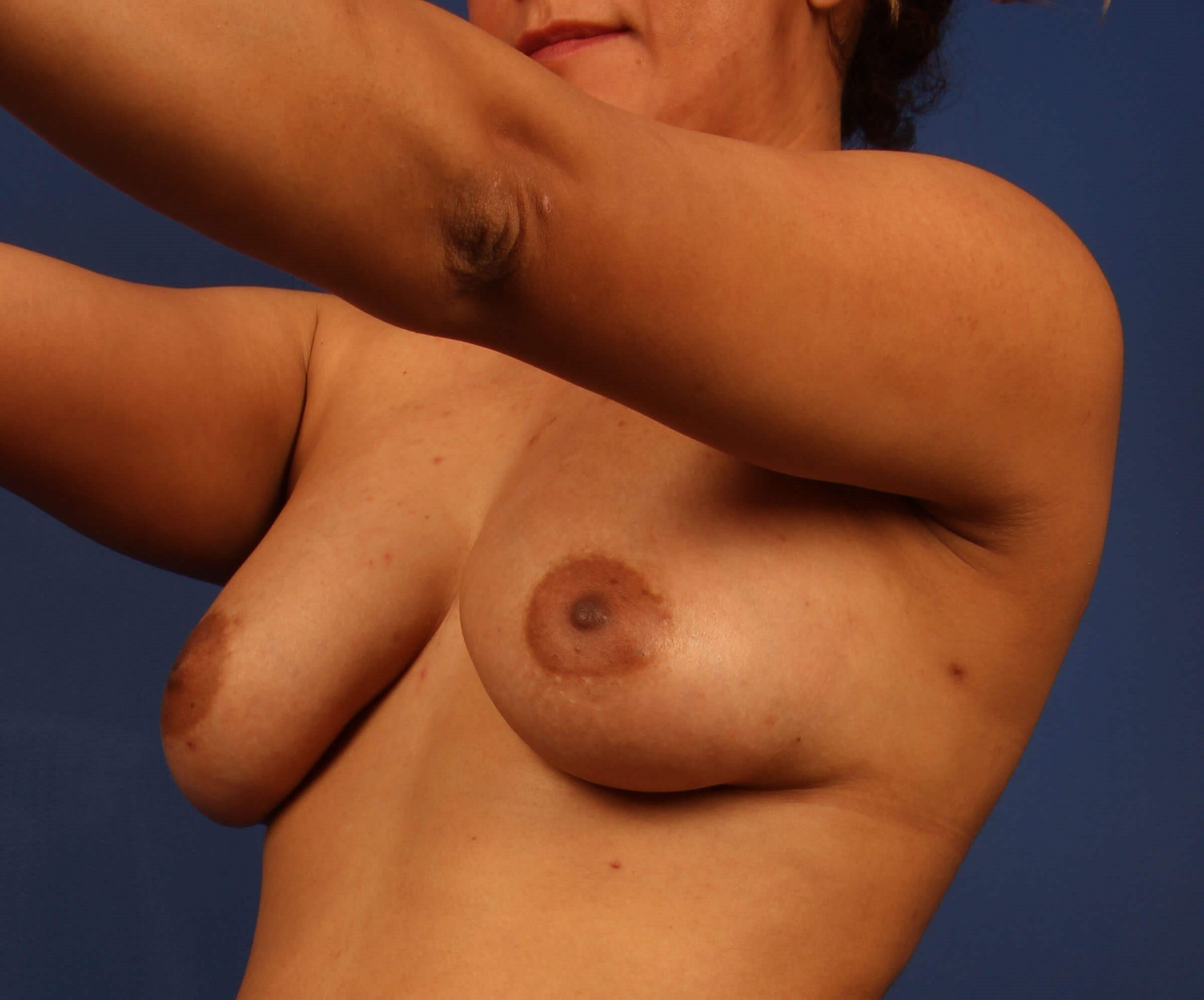 Scottsdale Natural Breast After