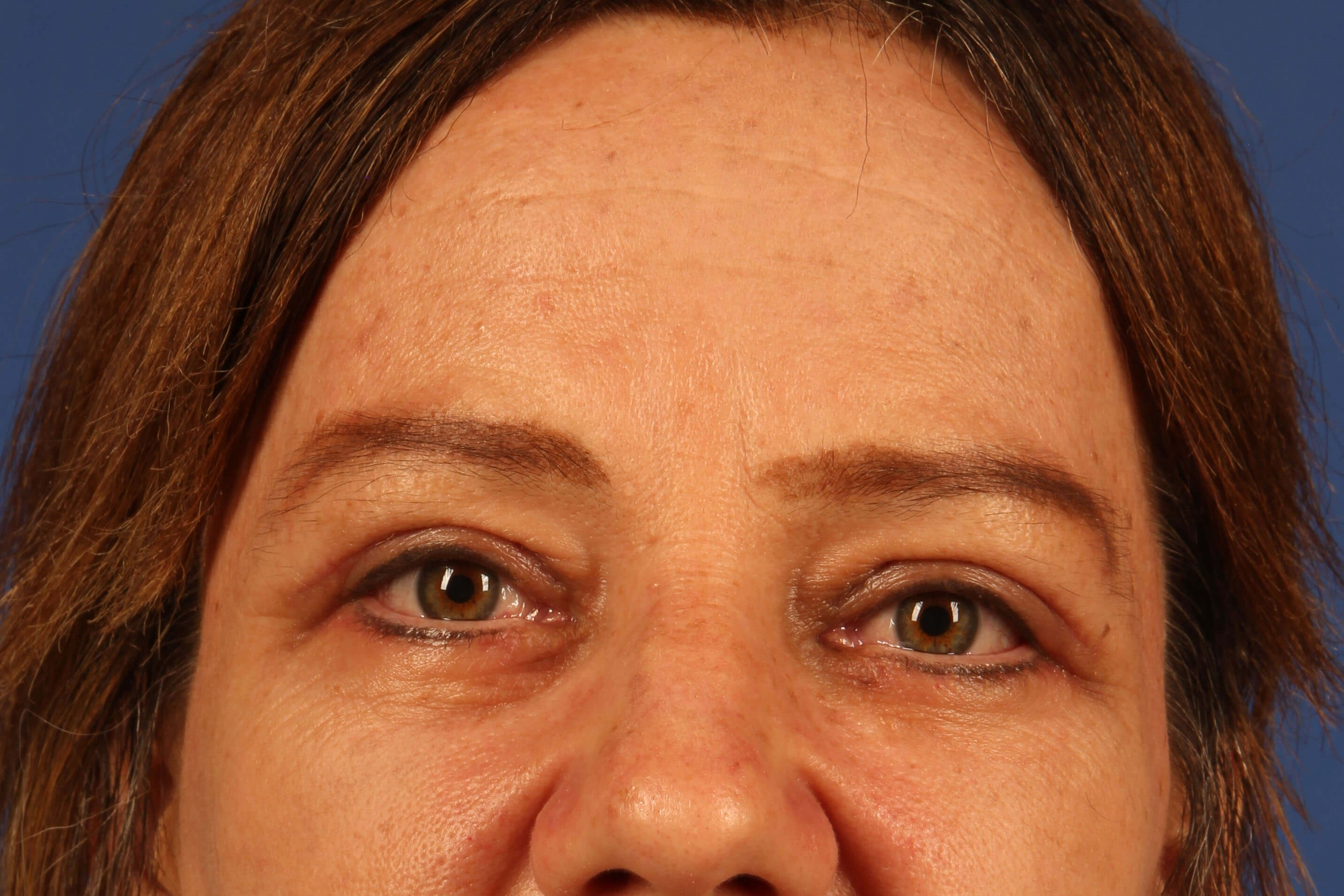 Scottsdale Eyelid surgery After