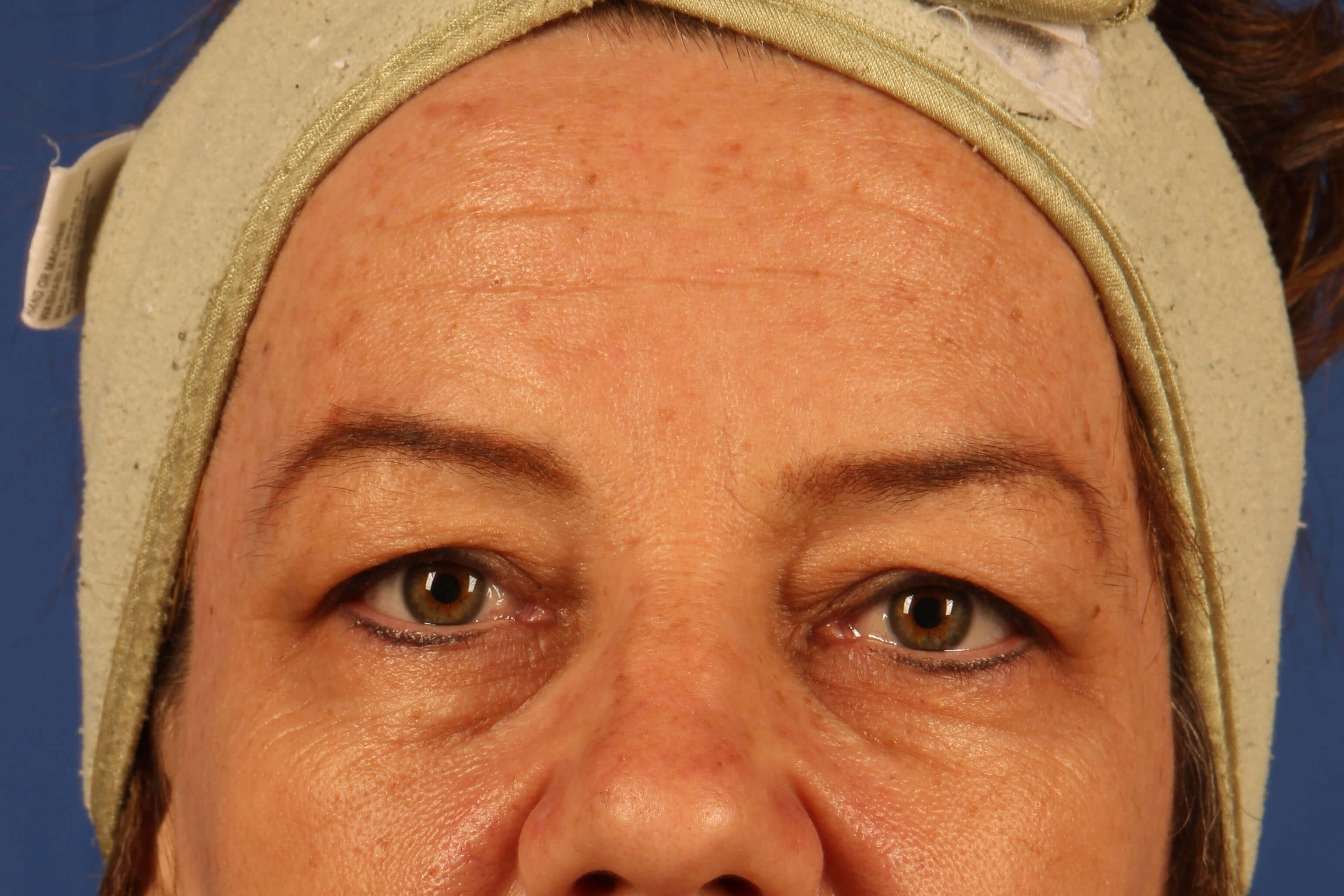 Scottsdale Eyelid surgery Before
