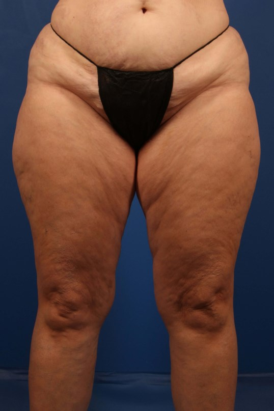 Scottsdale Liposuction and MTL Before