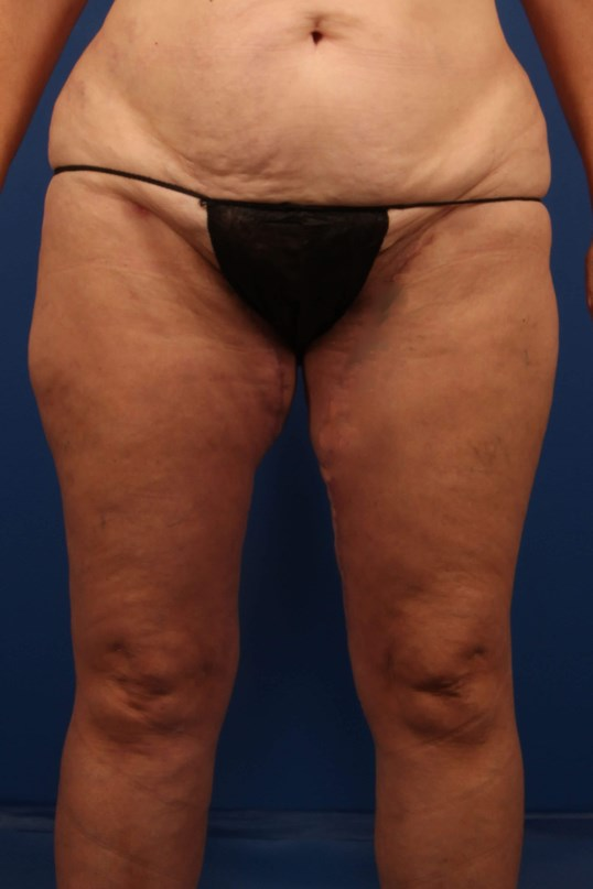 Scottsdale Liposuction and MTL After