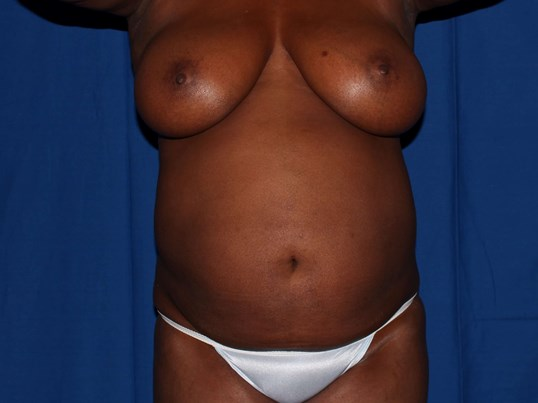 Scottsdale 360 Lipo Tummy tuck Before