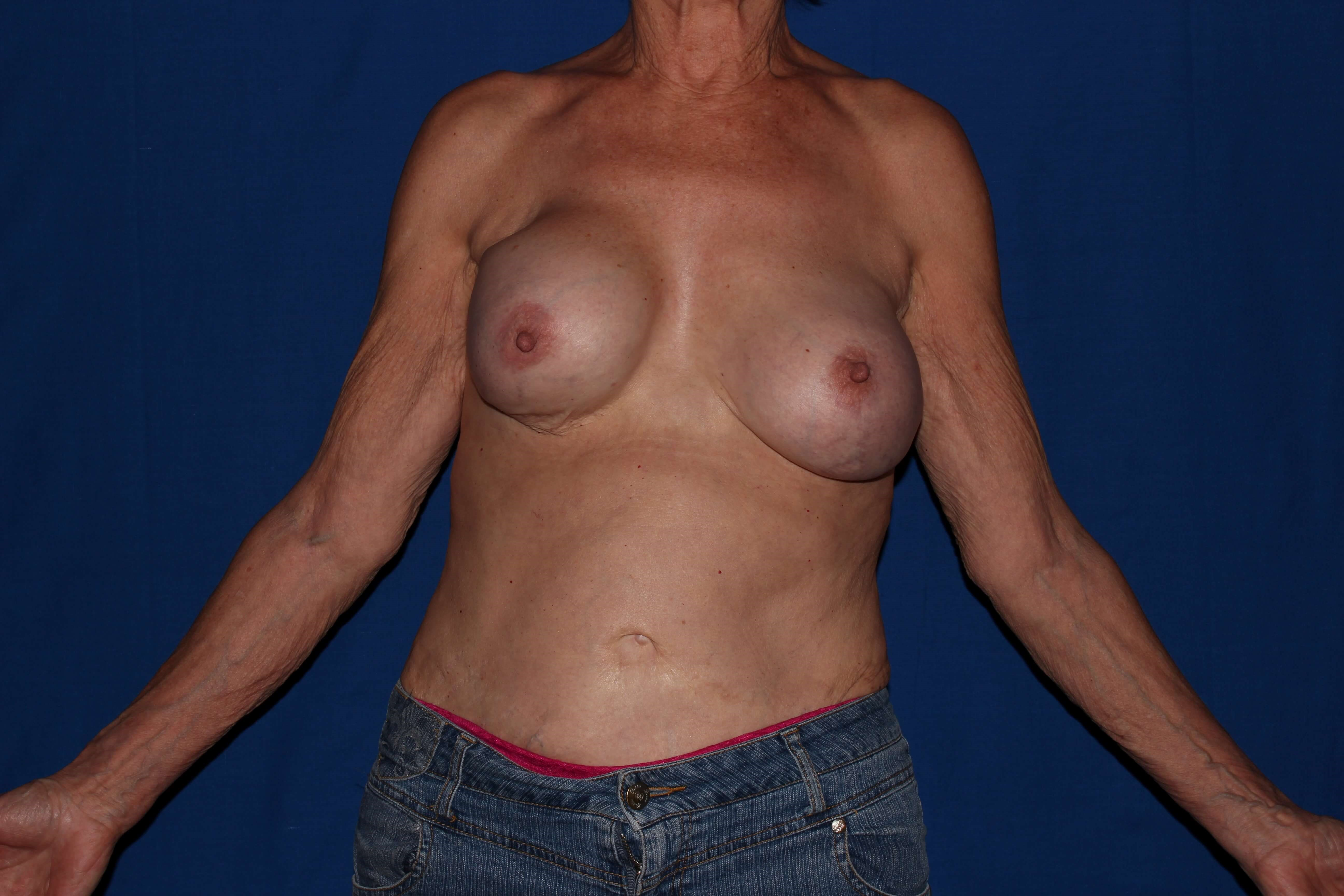 Scottsdale, AZ Breast Revision Before