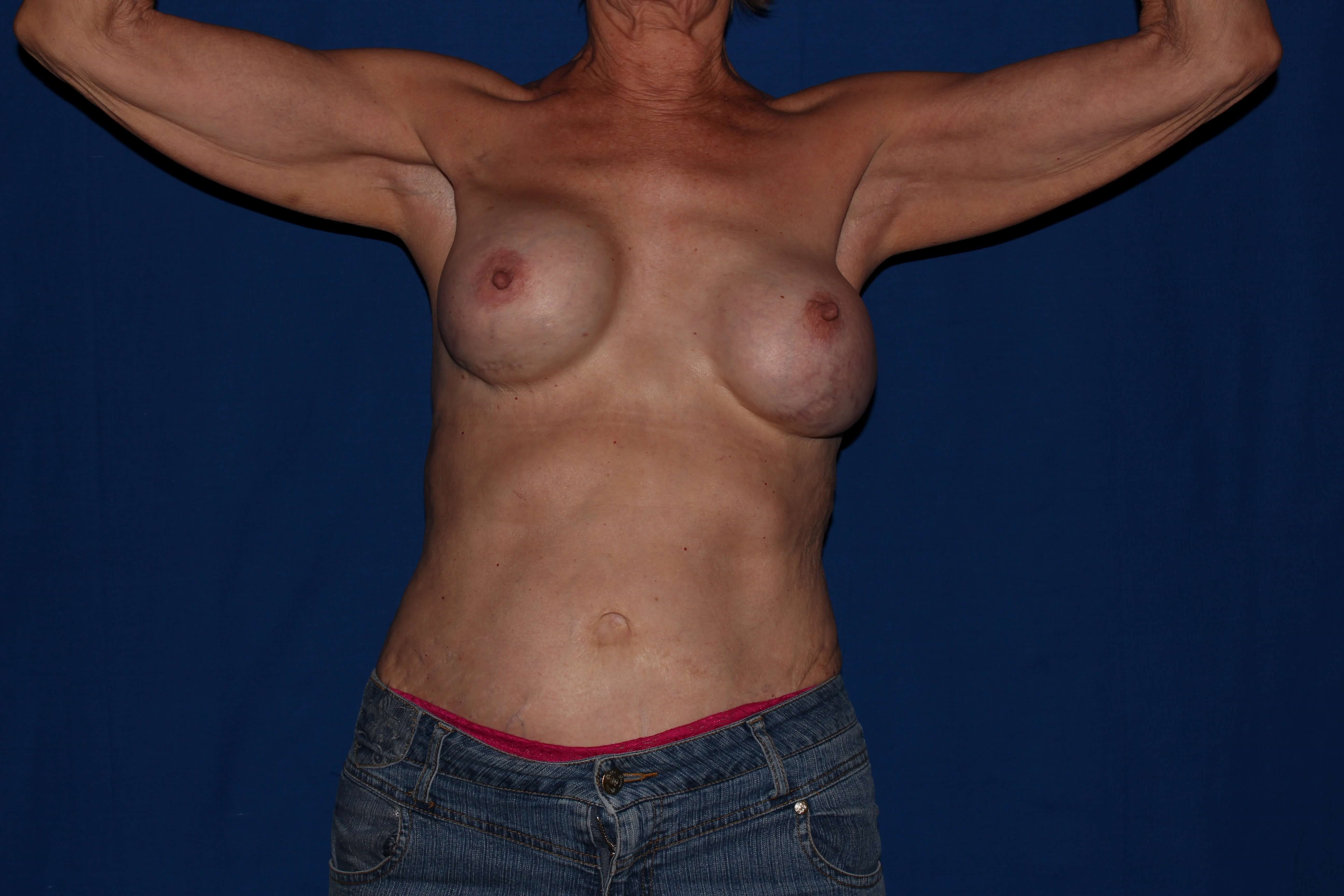 Scottsdale Breast Capsulectomy Before