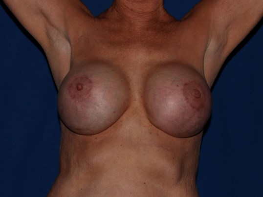 Scottsdale Breast Capsulectomy After