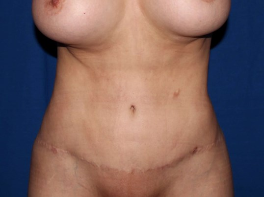 Scottsdale Liposuction 360 After