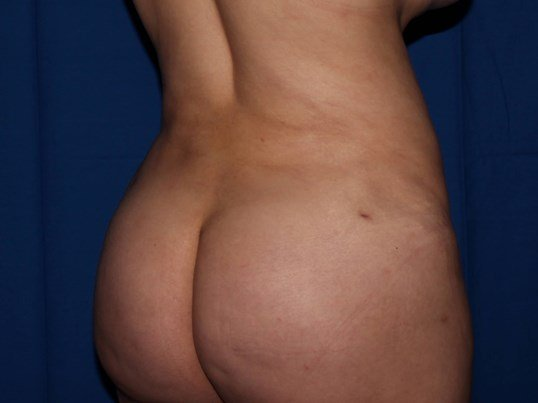 Scottsdale Liposuction 360 BBL After