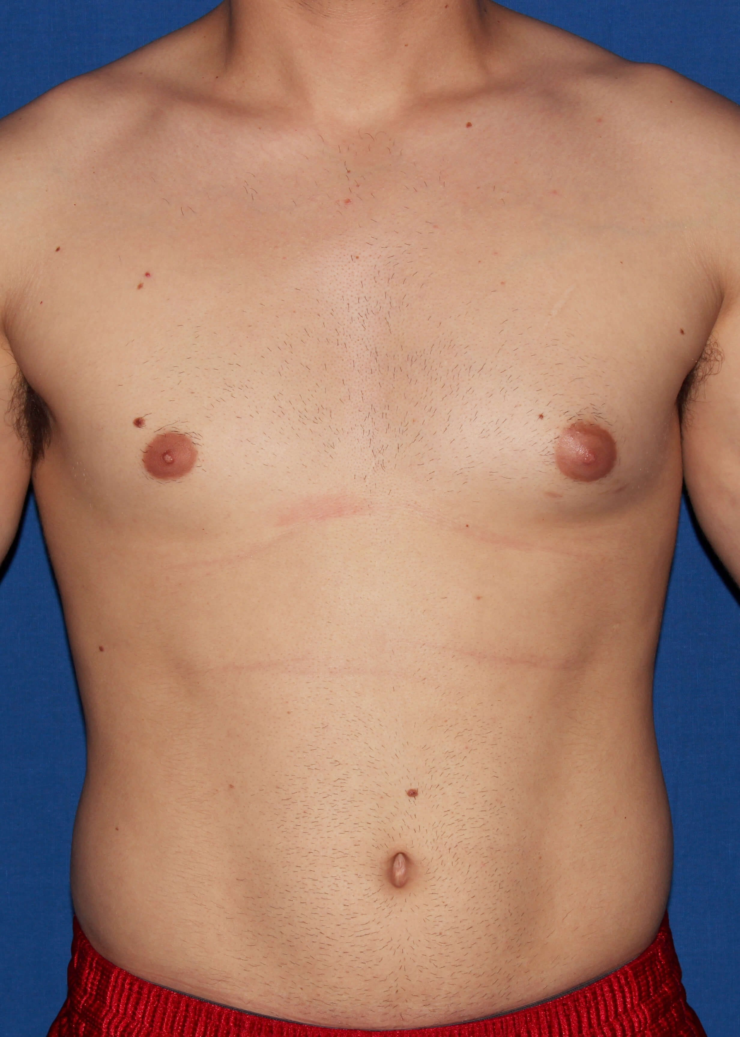 Scottsdale male liposuction Before