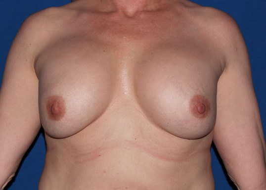 Scottsdale AZ breast revision Before