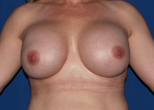 Scottsdale AZ breast revision After
