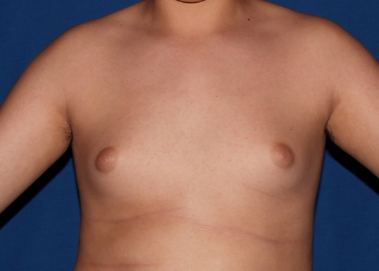 scottsdale male breast surgery Before