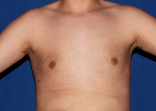 scottsdale male breast surgery After