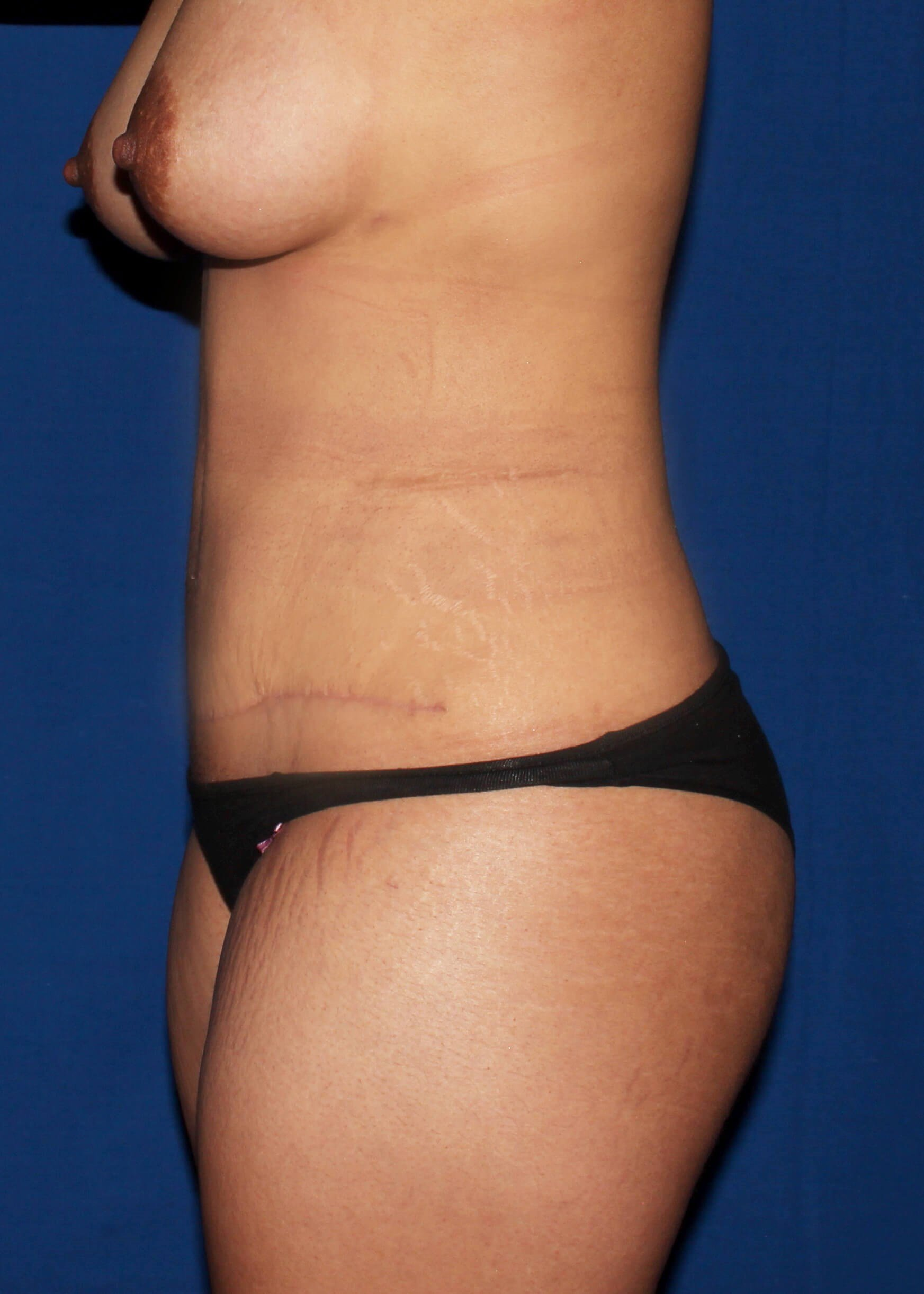 Scottdale lipoTummytuck After