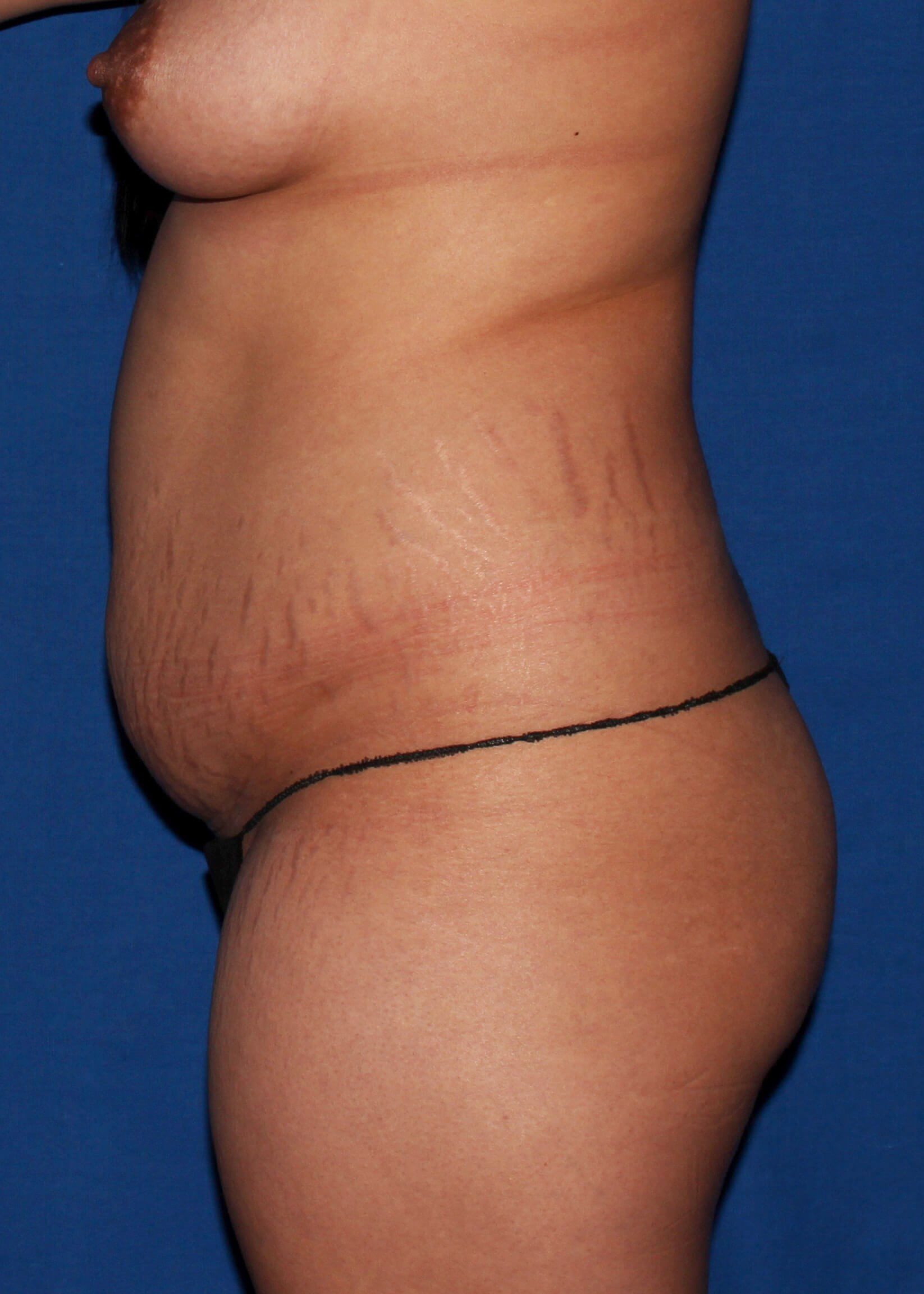 Scottdale lipoTummytuck Before