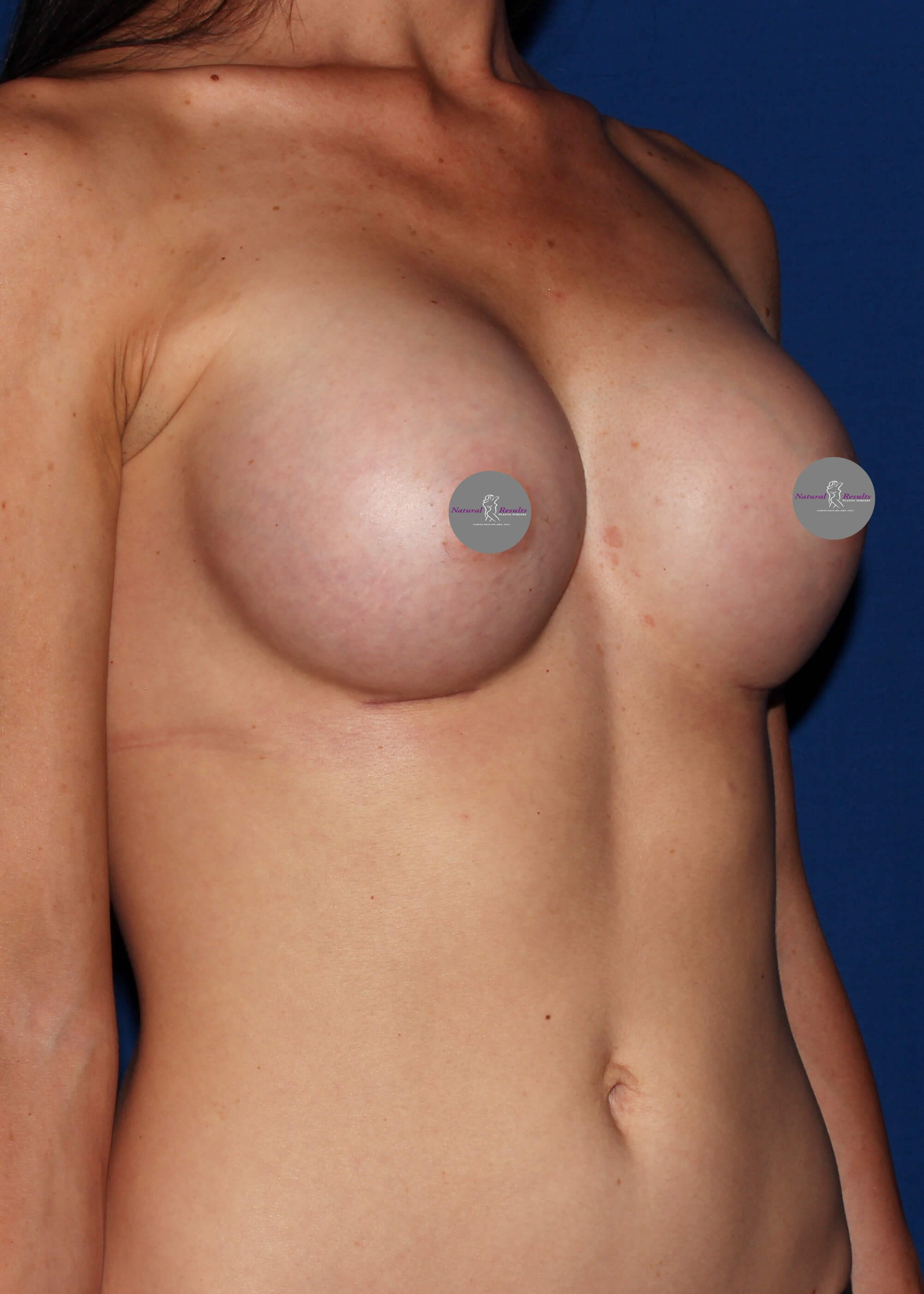Boob job Scottsdale Arizona After
