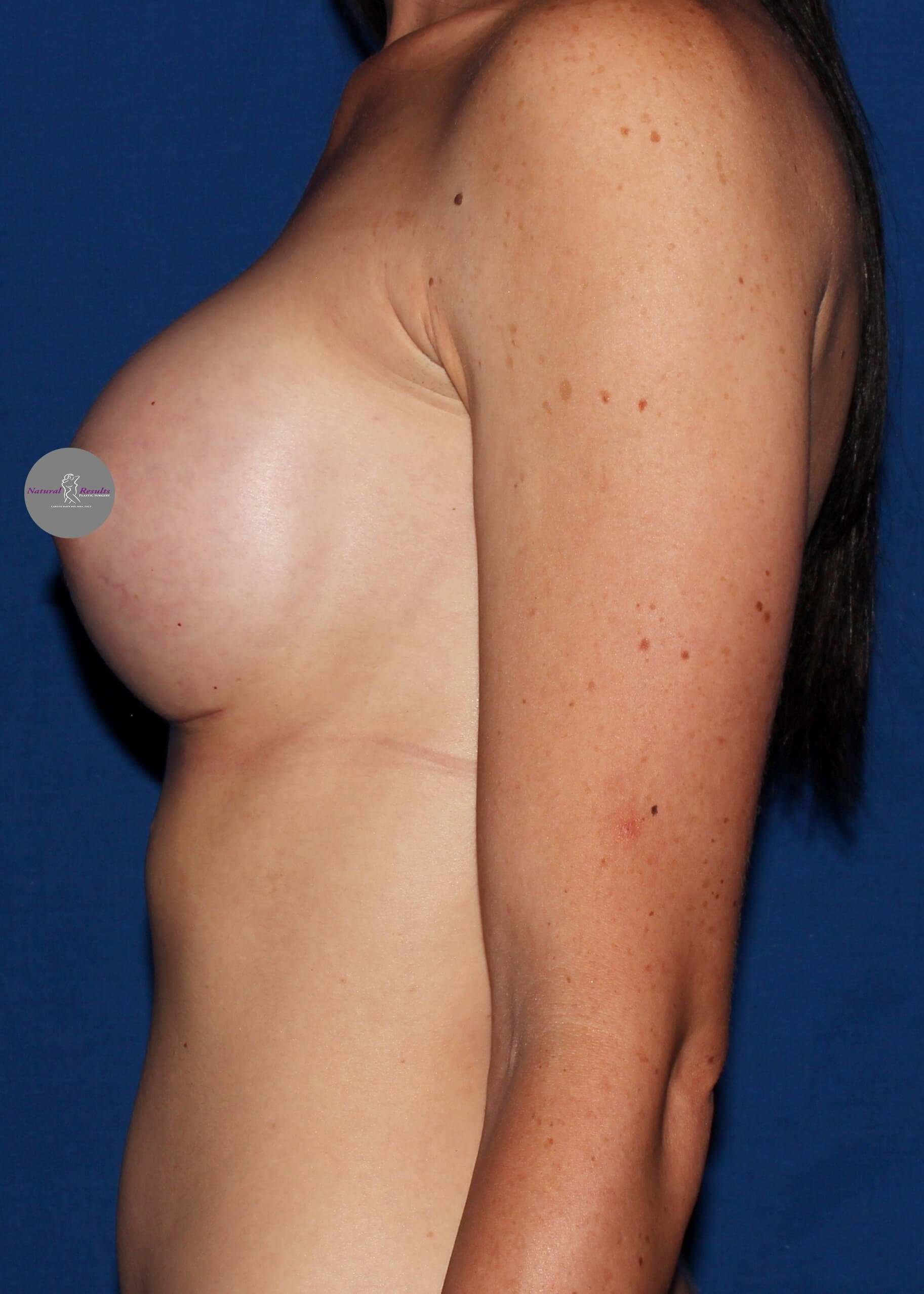breast augmentation in Arizona After