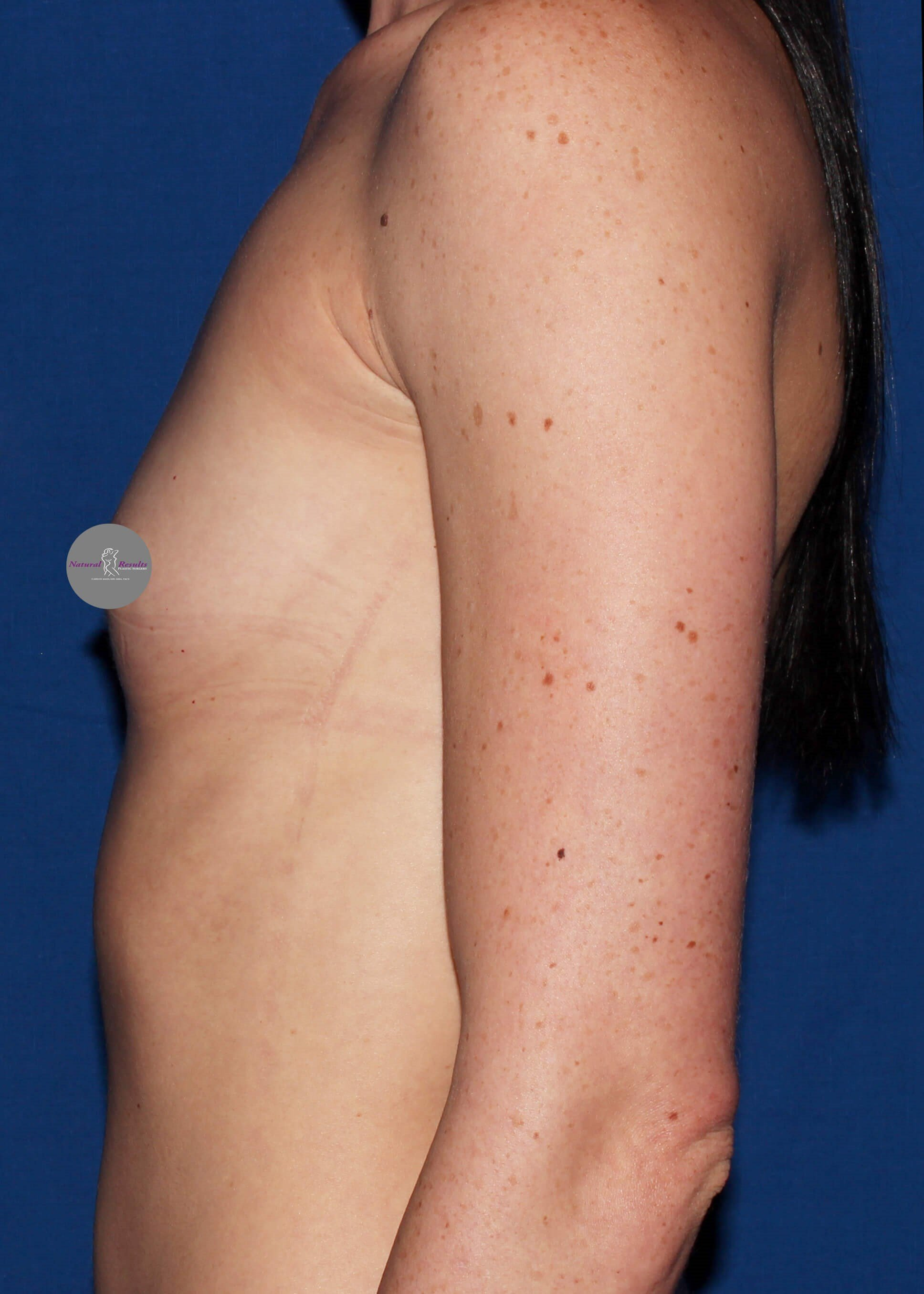 breast augmentation in Arizona Before