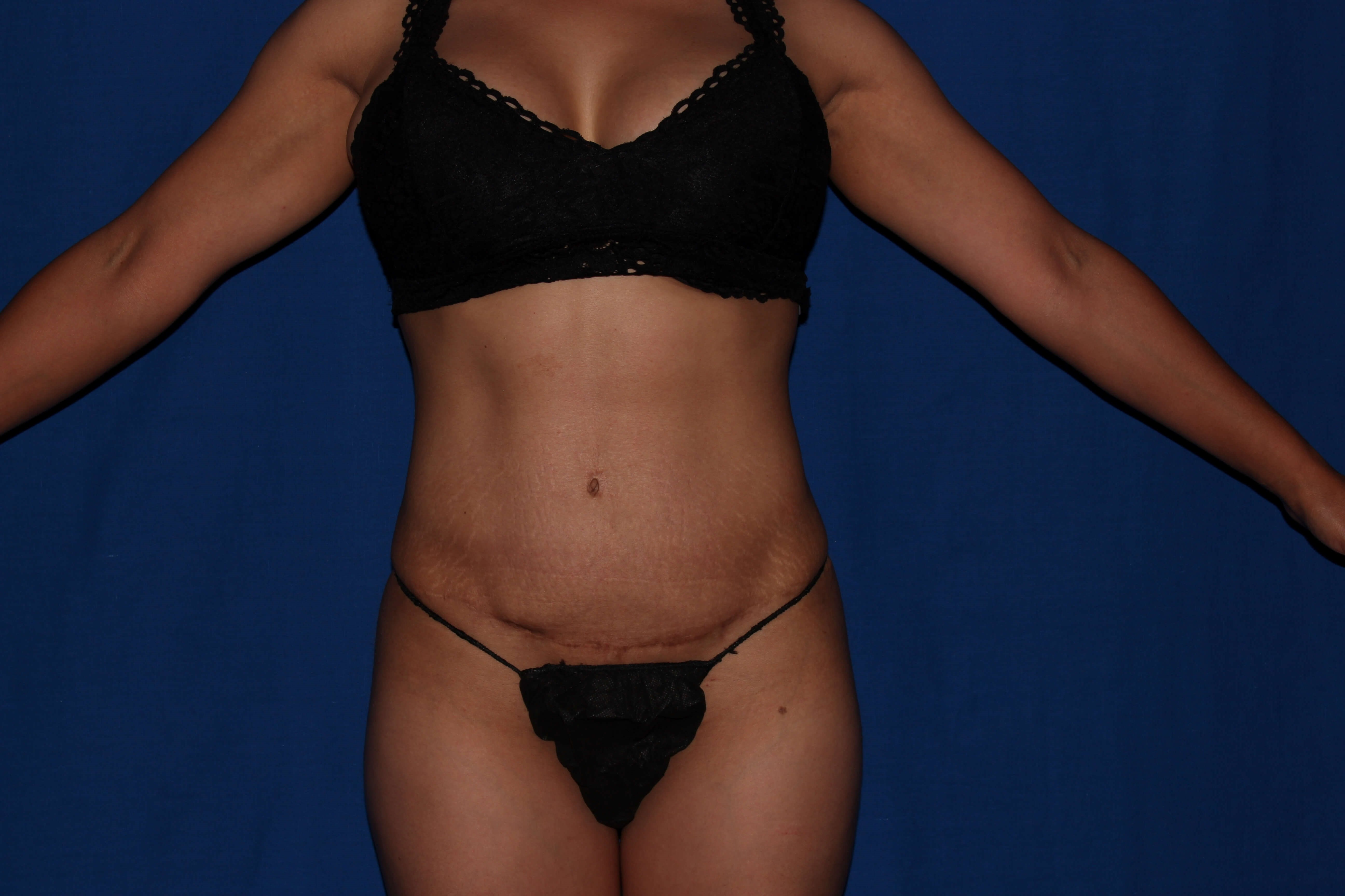Scottsdale female liposuction After