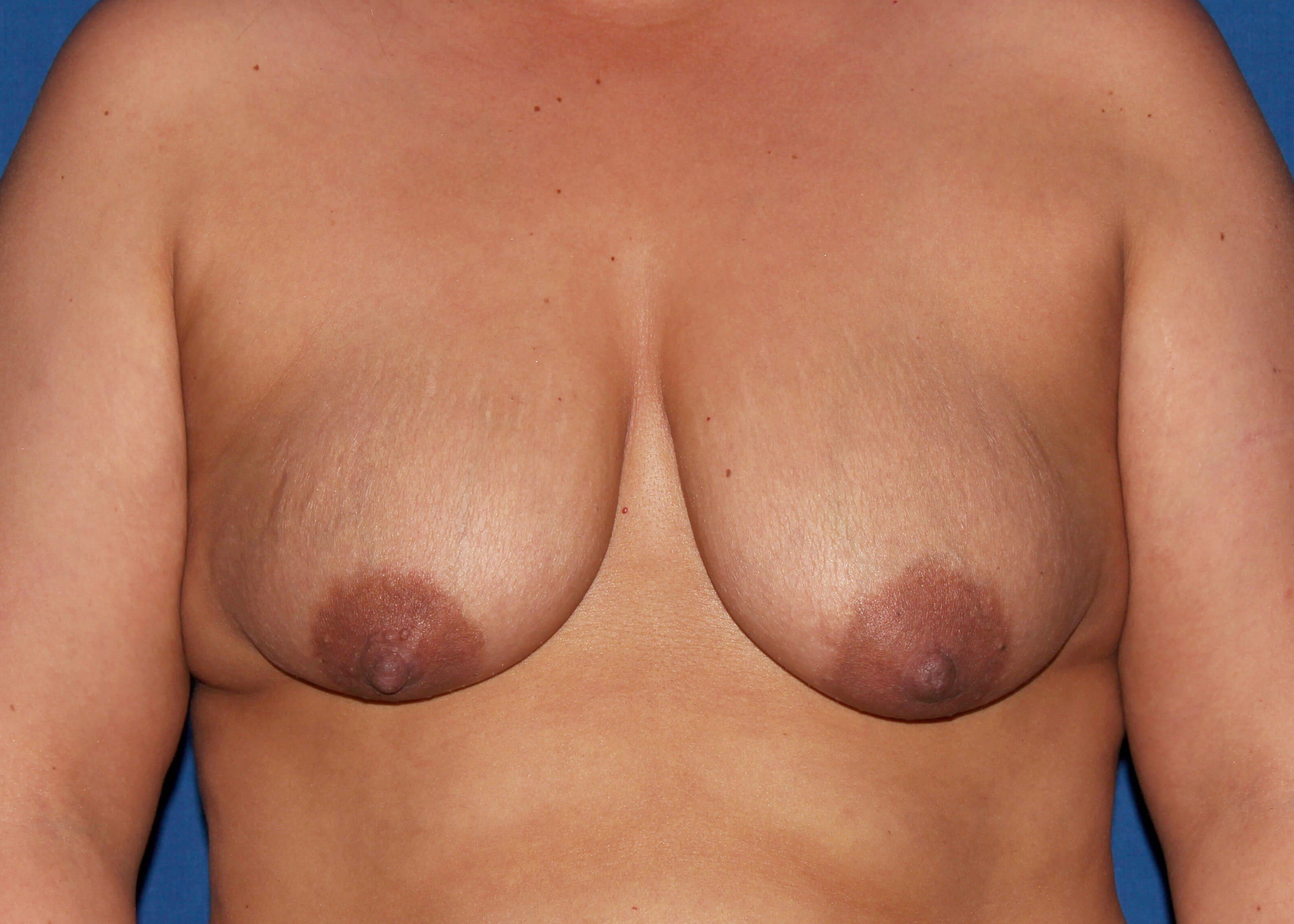 Bilateral BAM/Mastopexy Before