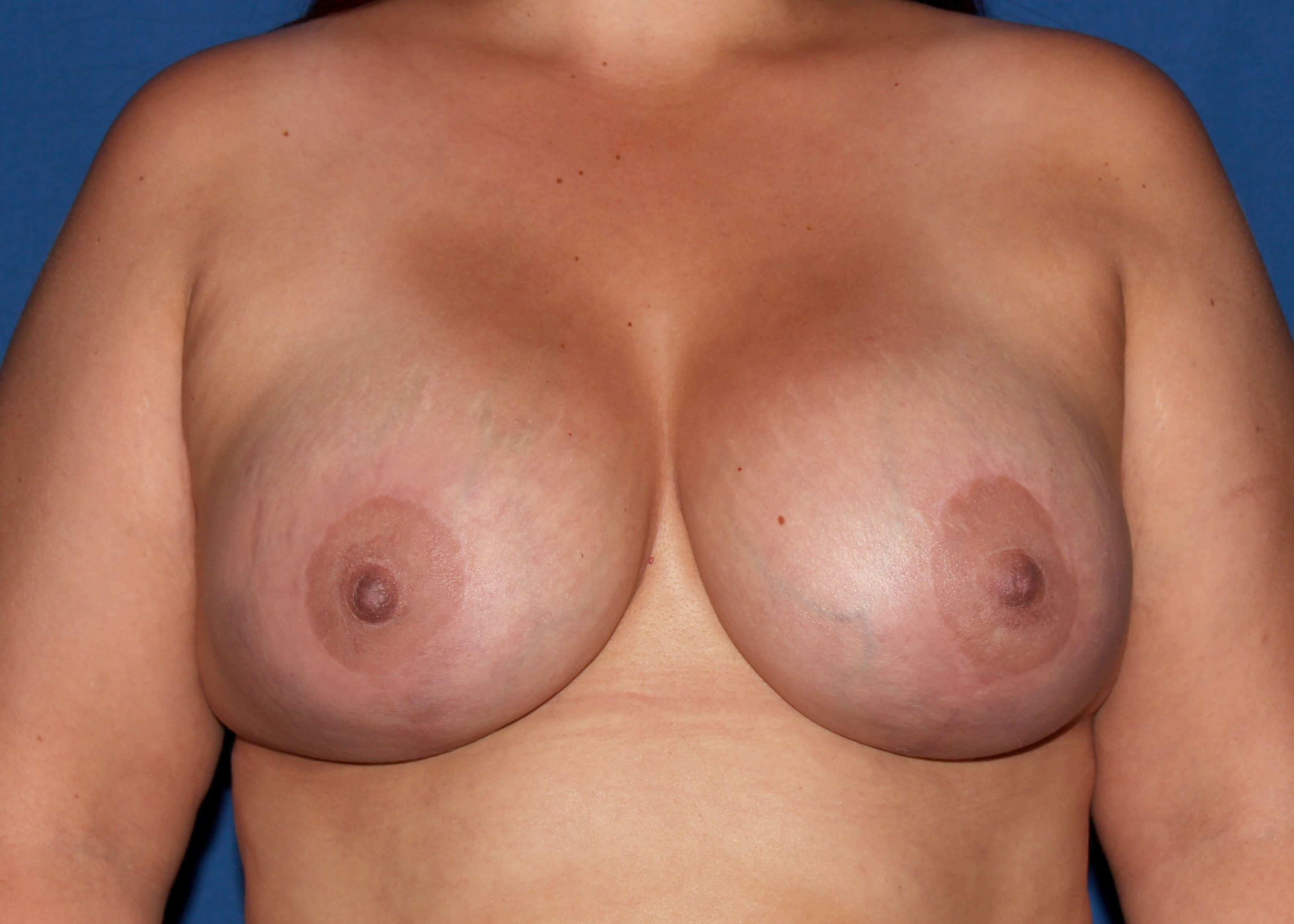 Bilateral BAM/Mastopexy After