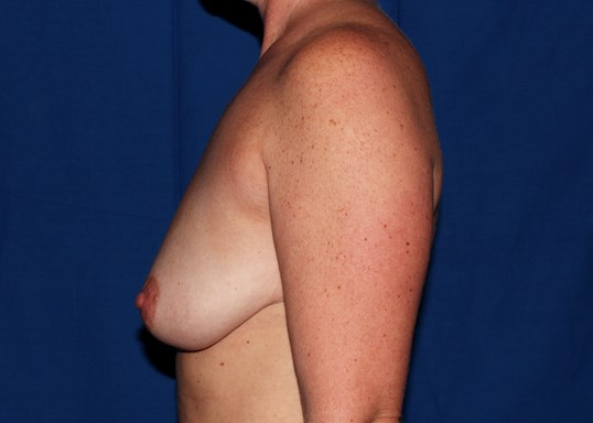 Scottsdale Augmentation w/lift Before