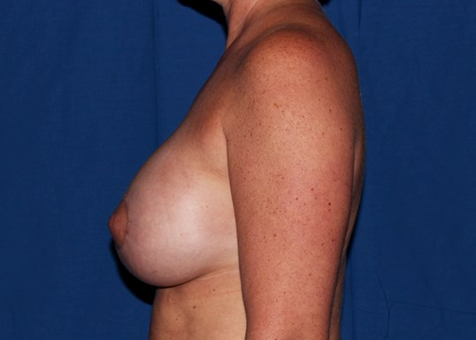 Scottsdale Augmentation w/lift After