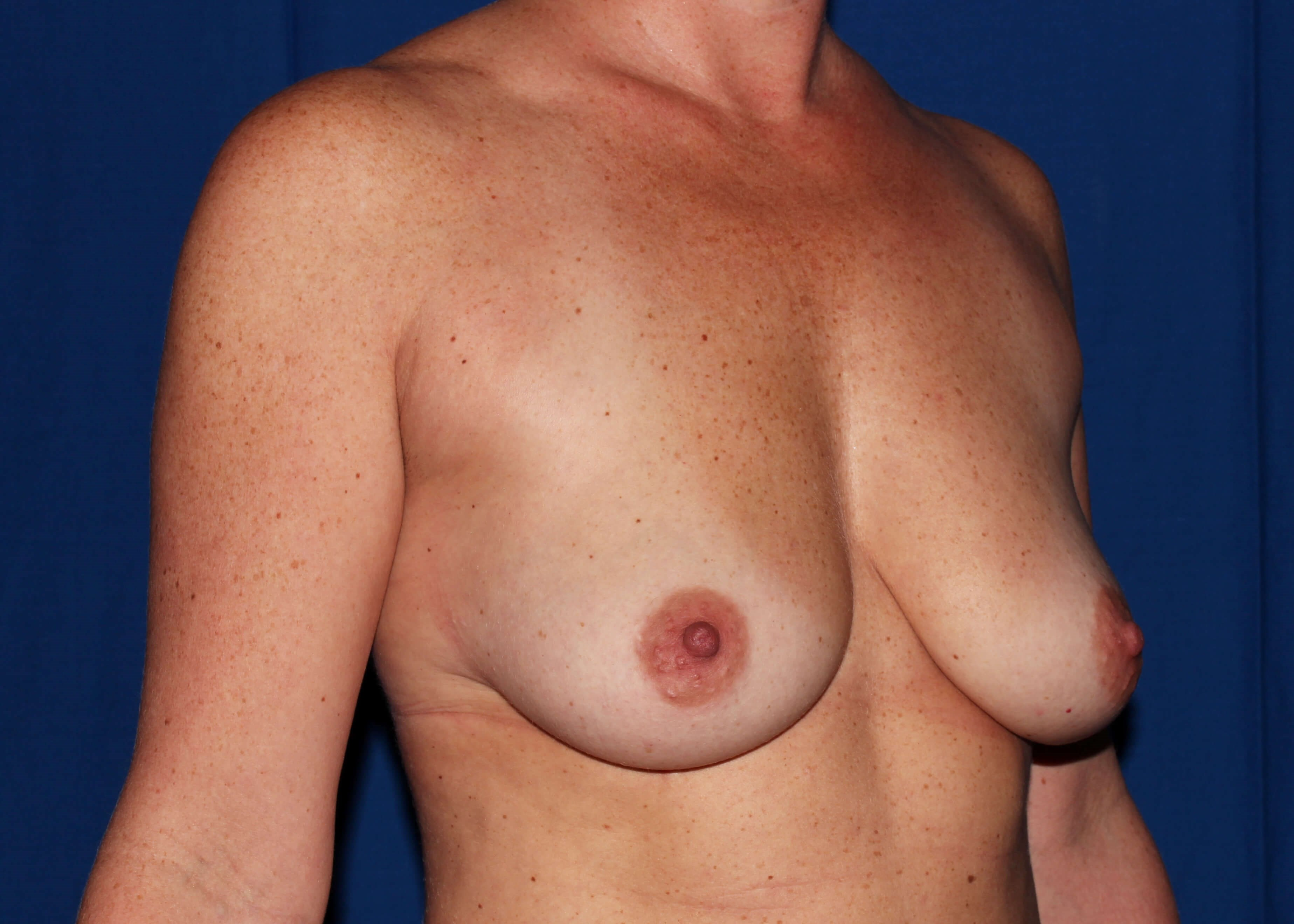 Scottsdale Breast Lift Before