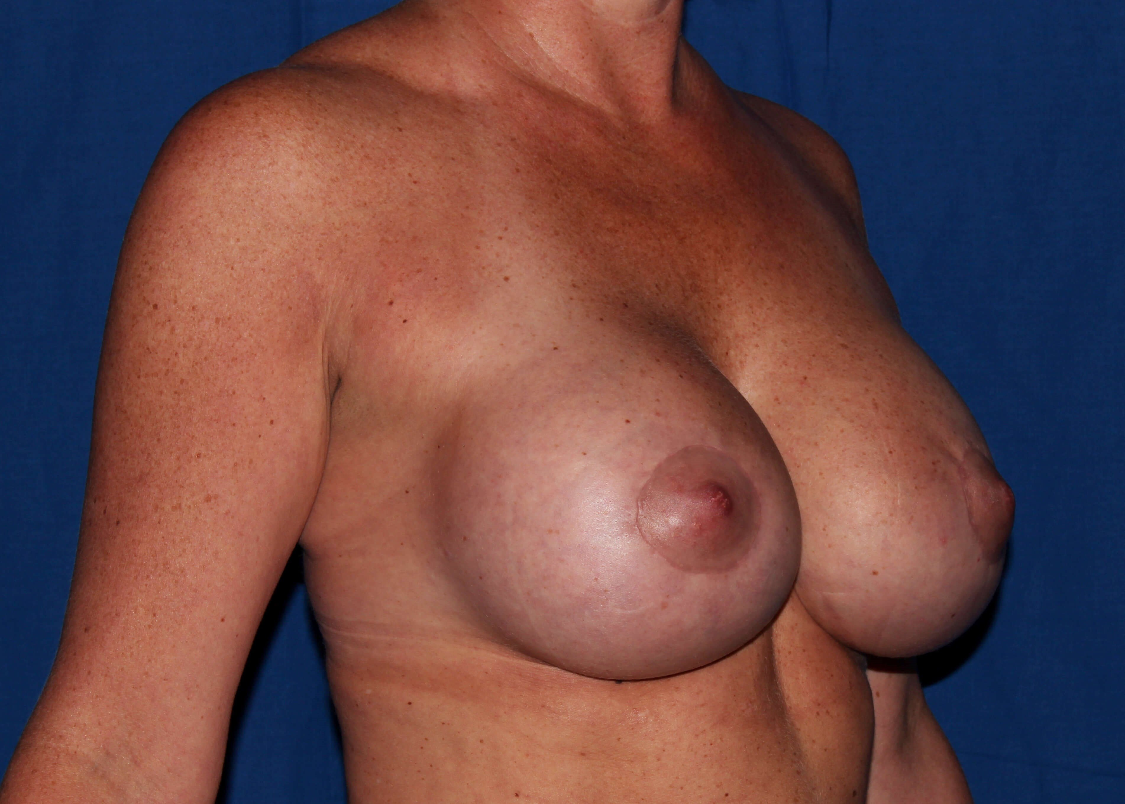 Scottsdale Breast Lift After