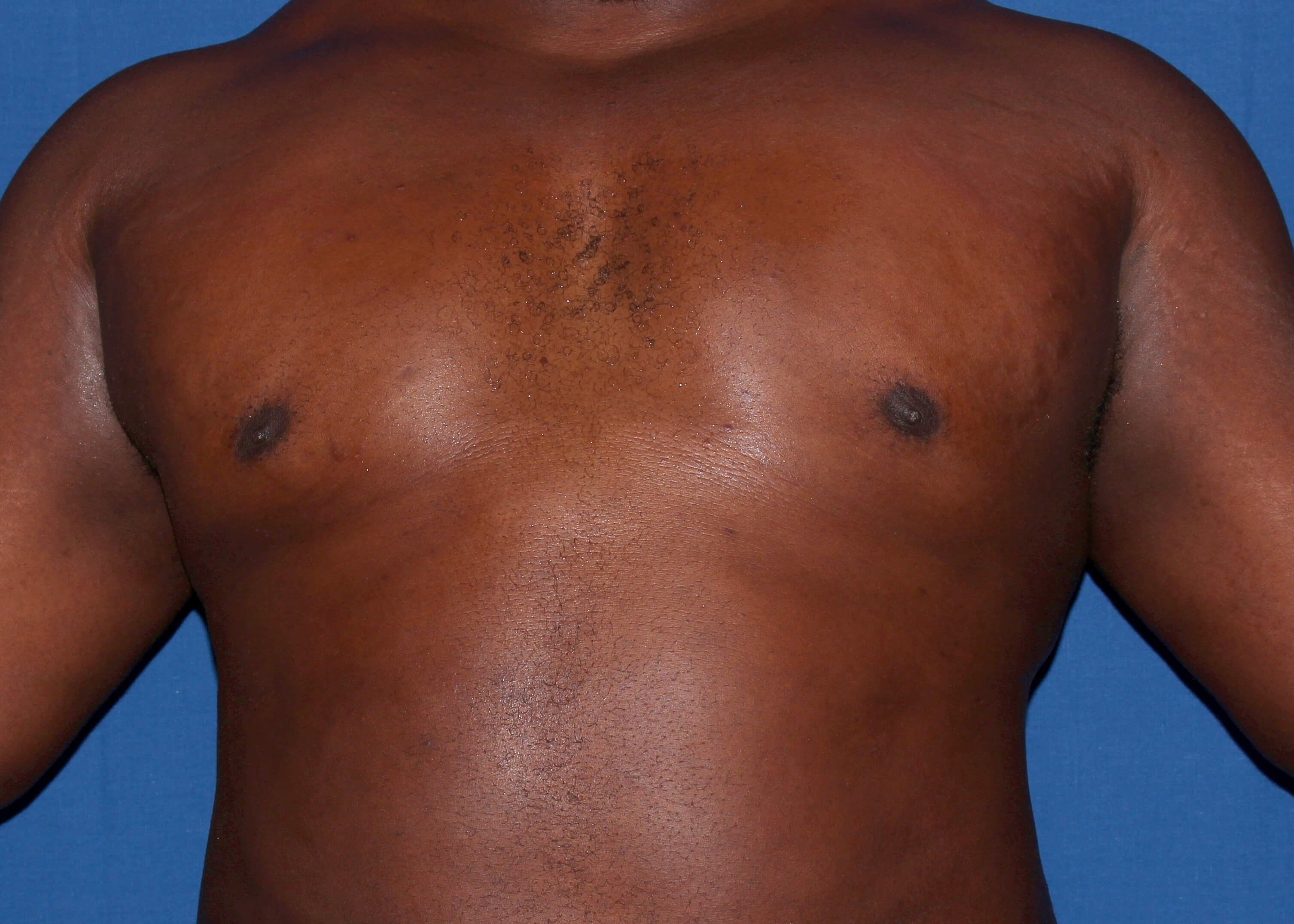 Dr.Carlos Mata Gynecomastia After