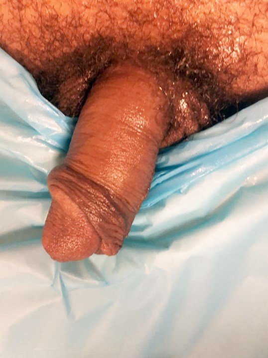 Penile Enhancement Before