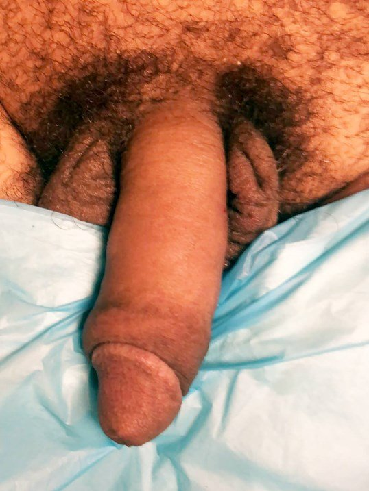 Penile Enhancement After