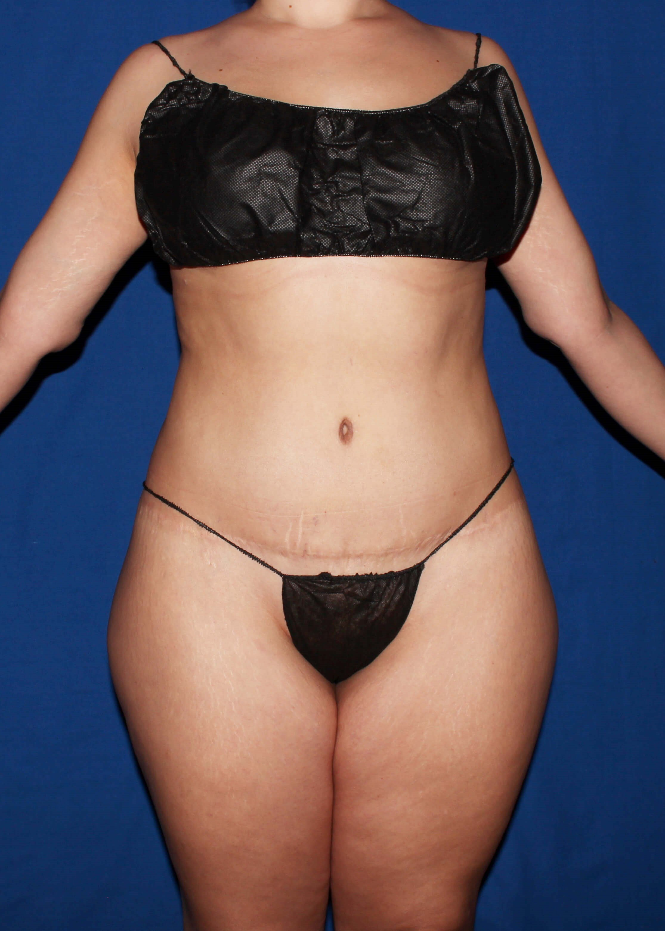 Full Torso Liposuction Before