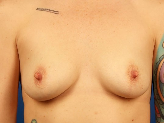 Scottsdale Breast Augmentation Before