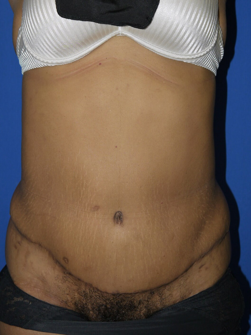 39 Y O Mother With Loose Skin After 2 Children With Lots
