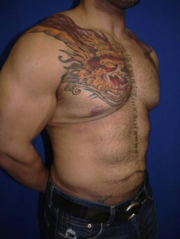 Right Oblique View Before