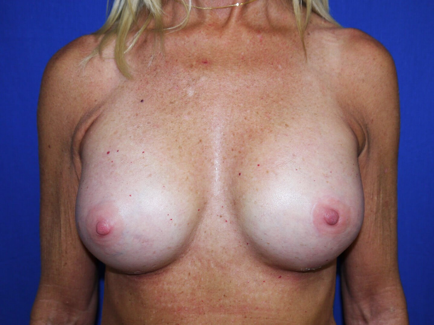 Breast Augmentation Results After Implants