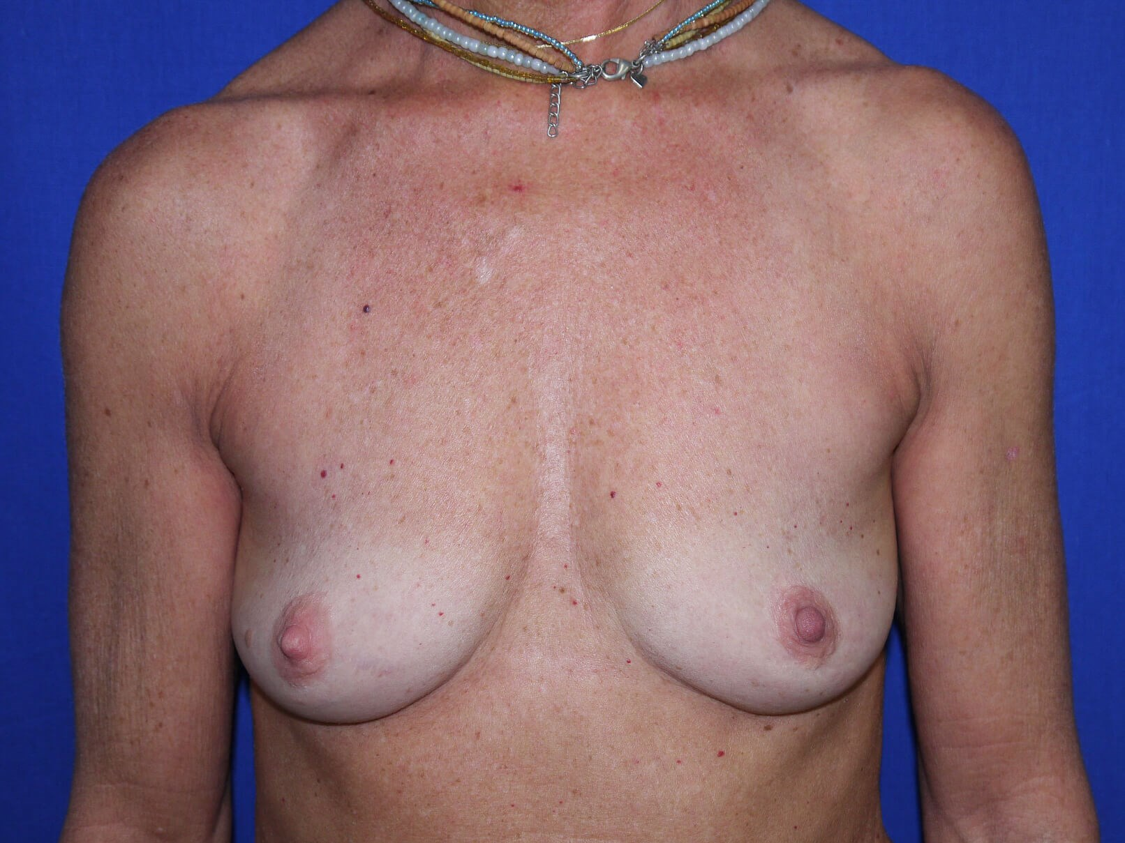 Breast Augmentation Results Before Implants