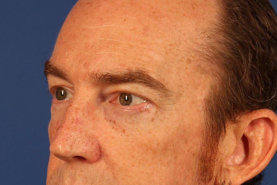 Scottsdale male eyelid surgery After